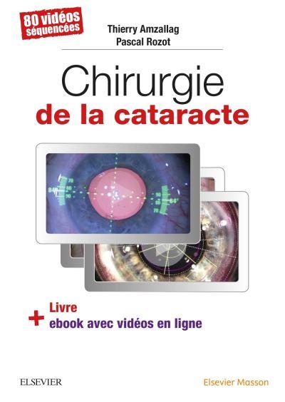 Livre + Ebook – Chirurgie de la cataracte